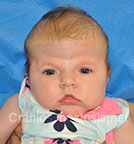 Front view before photo: multiple suture craniosynostosis case 2: Pre-operation age 2 weeks
