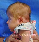 Side view before photo: multiple suture craniosynostosis case 2: Pre-operation age 2 weeks