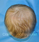 Top view after photo: multiple suture craniosynostosis case 3: Post-operation age 2 months