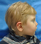 Side view before photo: multiple suture craniosynostosis case 3: Post-operation age 2 Years