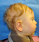 Side view before photo: multiple suture craniosynostosis case 3: Post-operation age 7 months
