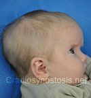 Side view before photo: multiple suture craniosynostosis case 3: Pre-operation age 2 weeks