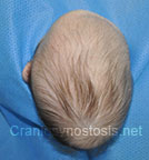 Top view before photo: multiple suture craniosynostosis case 3: Pre-operation age 2 weeks