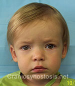 Front view after photo: sagittal suture craniosynostosis case 1: Post-operation age 1.5 years