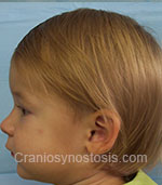 Side view before photo: sagittal suture craniosynostosis case 1: Post-operation age 1.5 years