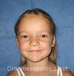 Front view after photo: sagittal suture craniosynostosis case 1: Post-operation age 4 years