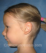 Side view before photo: sagittal suture craniosynostosis case 1: Post-operation age 4 years