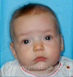 Front view before photo: sagittal suture craniosynostosis case 1: Post-operation age 7 weeks
