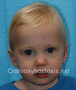 Front view after photo: sagittal suture craniosynostosis case 2: Post-operation age 1 year and 4 months