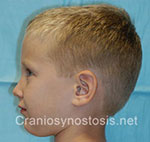 Side view before photo: sagittal suture craniosynostosis case 2: Post-operation age 5 years