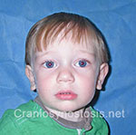 Front view after photo: sagittal suture craniosynostosis case 3: Post-operation age 3.5 years