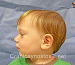 Side view before photo: sagittal suture craniosynostosis case 3: Post-operation age 3.5 years