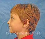 Side view before photo: sagittal suture craniosynostosis case 3: Post-operation age 5 years