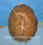 Top view before photo: sagittal suture craniosynostosis case 3: Post-operation age 5 years