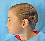 Side view before photo: sagittal suture craniosynostosis case 3: Post-operation age 8 years