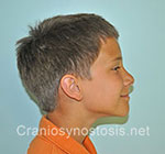 Side view before photo: sagittal suture craniosynostosis case 4: Pre-operation age 11 years