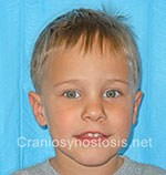 Front view after photo: sagittal suture craniosynostosis case 4: Post-operation age 3.5 years
