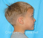 Side view before photo: sagittal suture craniosynostosis case 4: Post-operation age 3.5 years