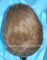 Top view before photo: sagittal suture craniosynostosis case 4: Pre-operation age 3.5 years