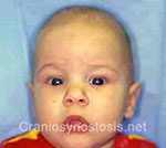 Front view before photo: sagittal suture craniosynostosis case 4: Post-operation age 3 months