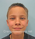 Front view after photo: sagittal suture craniosynostosis case 4: Post-operation age 5 years