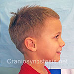 Side view before photo: sagittal suture craniosynostosis case 4: Post-operation age 5 years