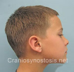 Side view before photo: sagittal suture craniosynostosis case 4: Pre-operation age 9 years